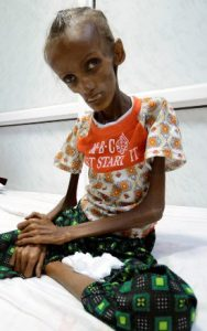 yemen-starvation-saida-ahmad-baghili