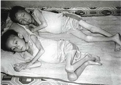 Starving North Korea refugee children